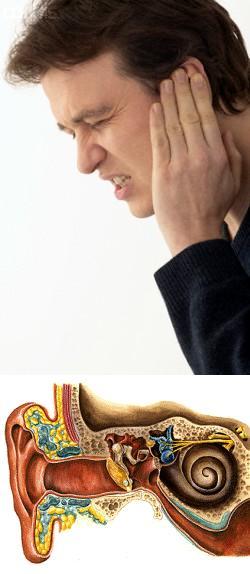 Обморожения уха лечение в домашних условиях