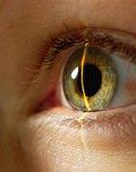 от чего появляется глаукома